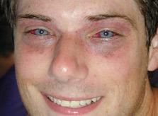 Синяки-под-глазами